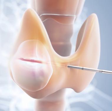 Ablacion nodulos tiroideos