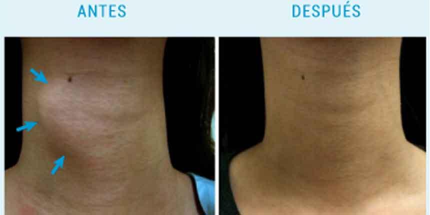 Ablación por radiofrecuencia de nódulos tiroideos